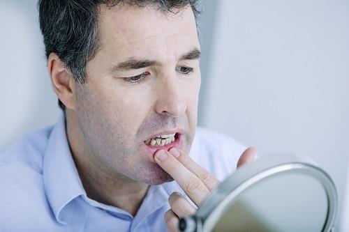 man examines his gums